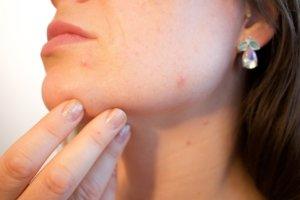 Диетология в косметологии. дерматоз